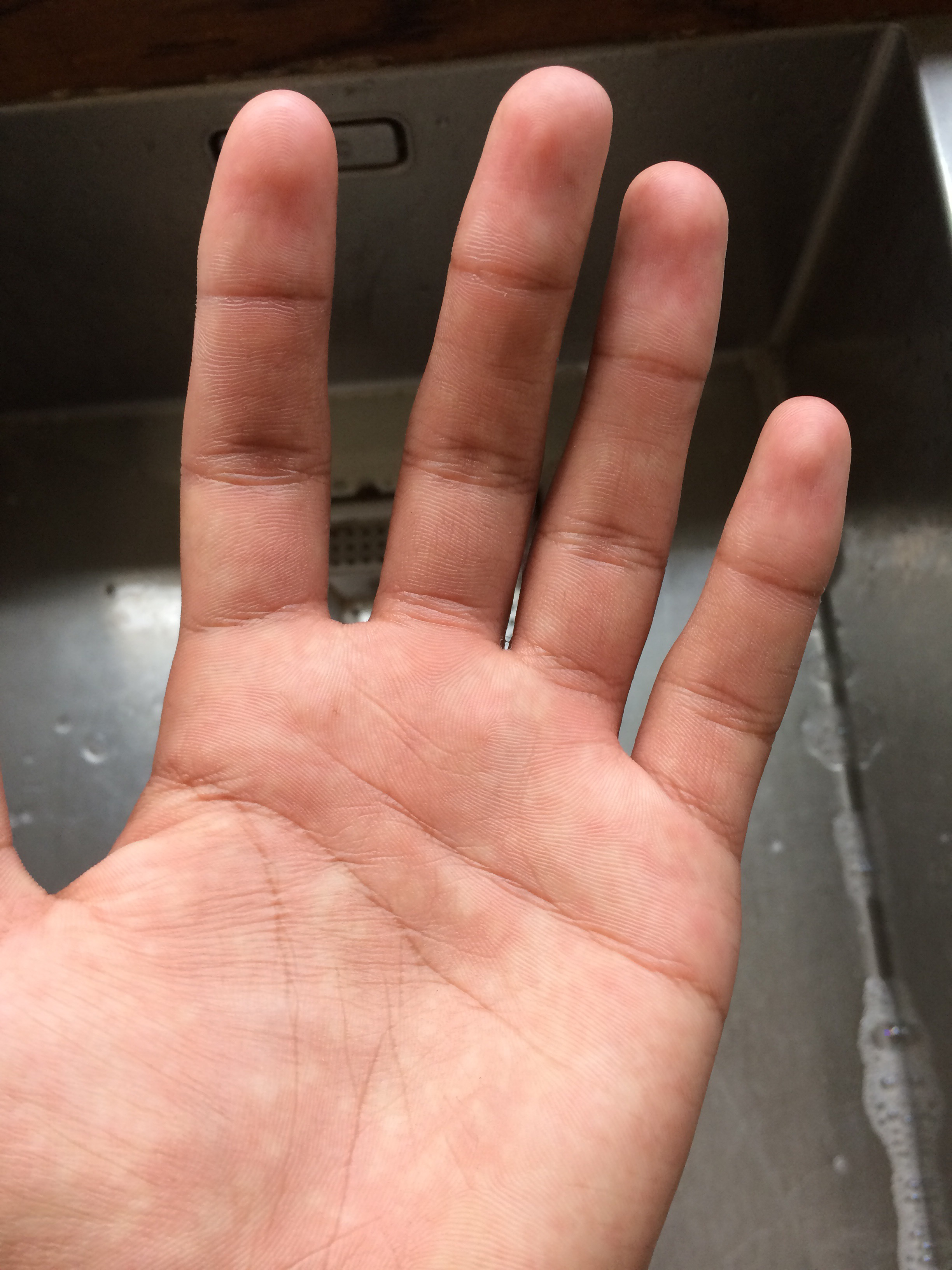 Picture of Wash Your Hands Normally