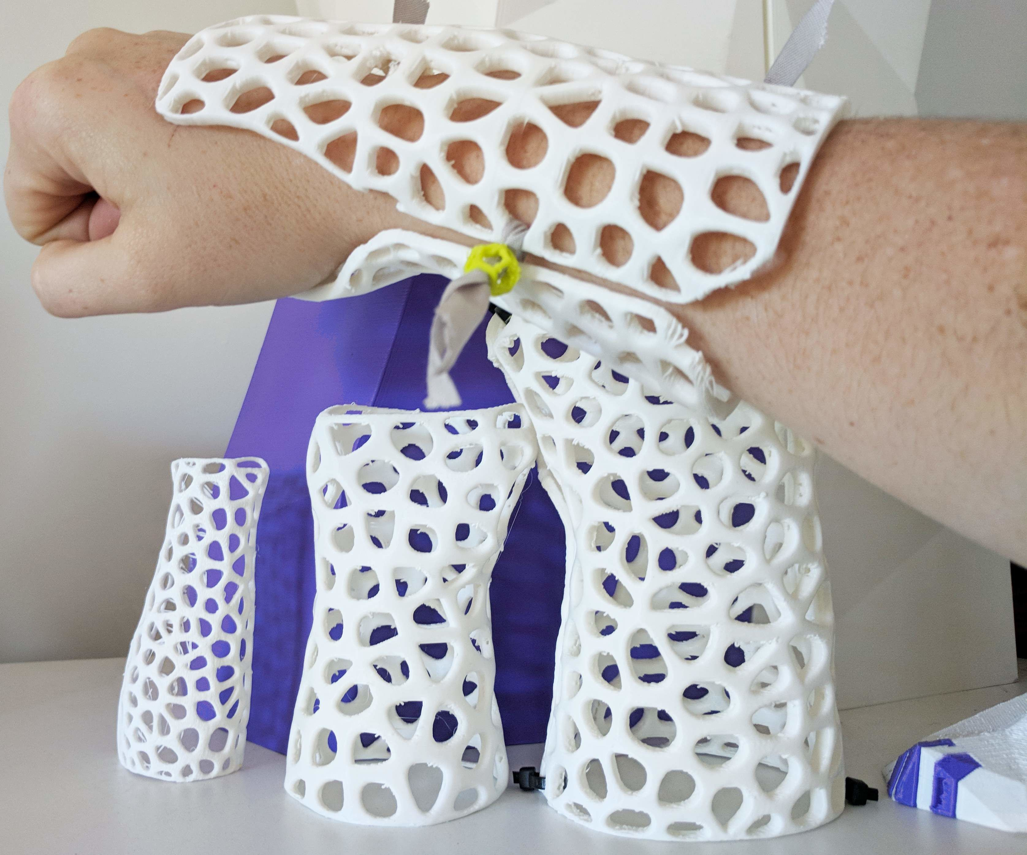 How to Design Custom, 3D Printable Braces for Arm Injury: 8 Steps