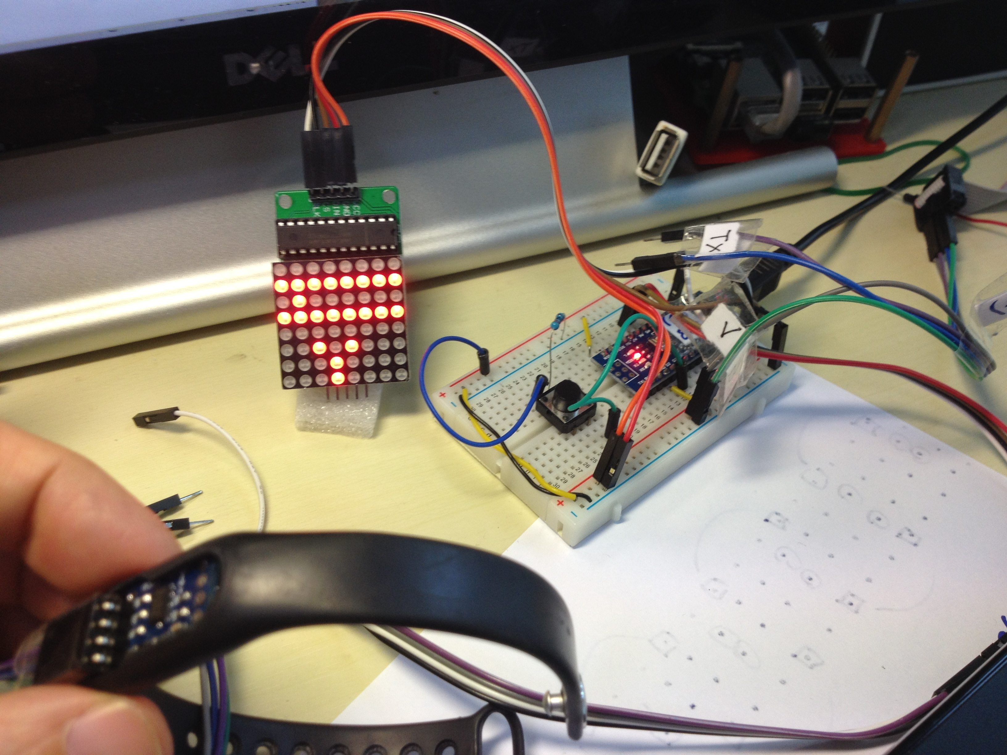 Picture of Physiotherapy Helper (Arduino Adxl345 Matrix)
