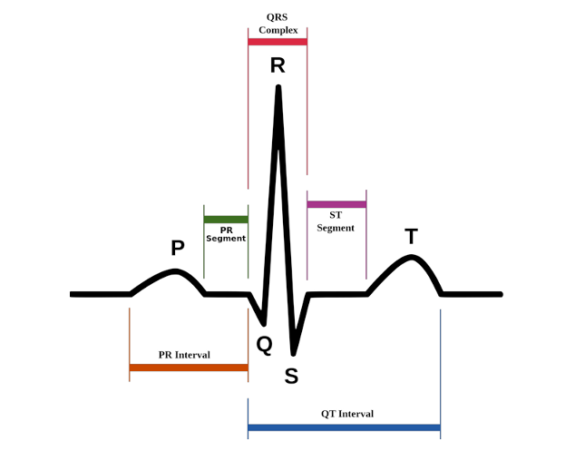 Picture of How to Build an ECG and Heart Rate Digital Monitor
