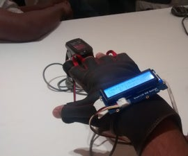 E-Health Glove (Intel IoT)