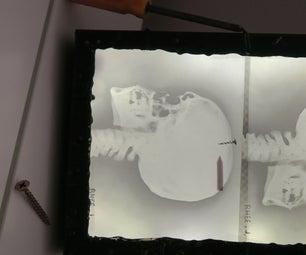 X-Ray Light