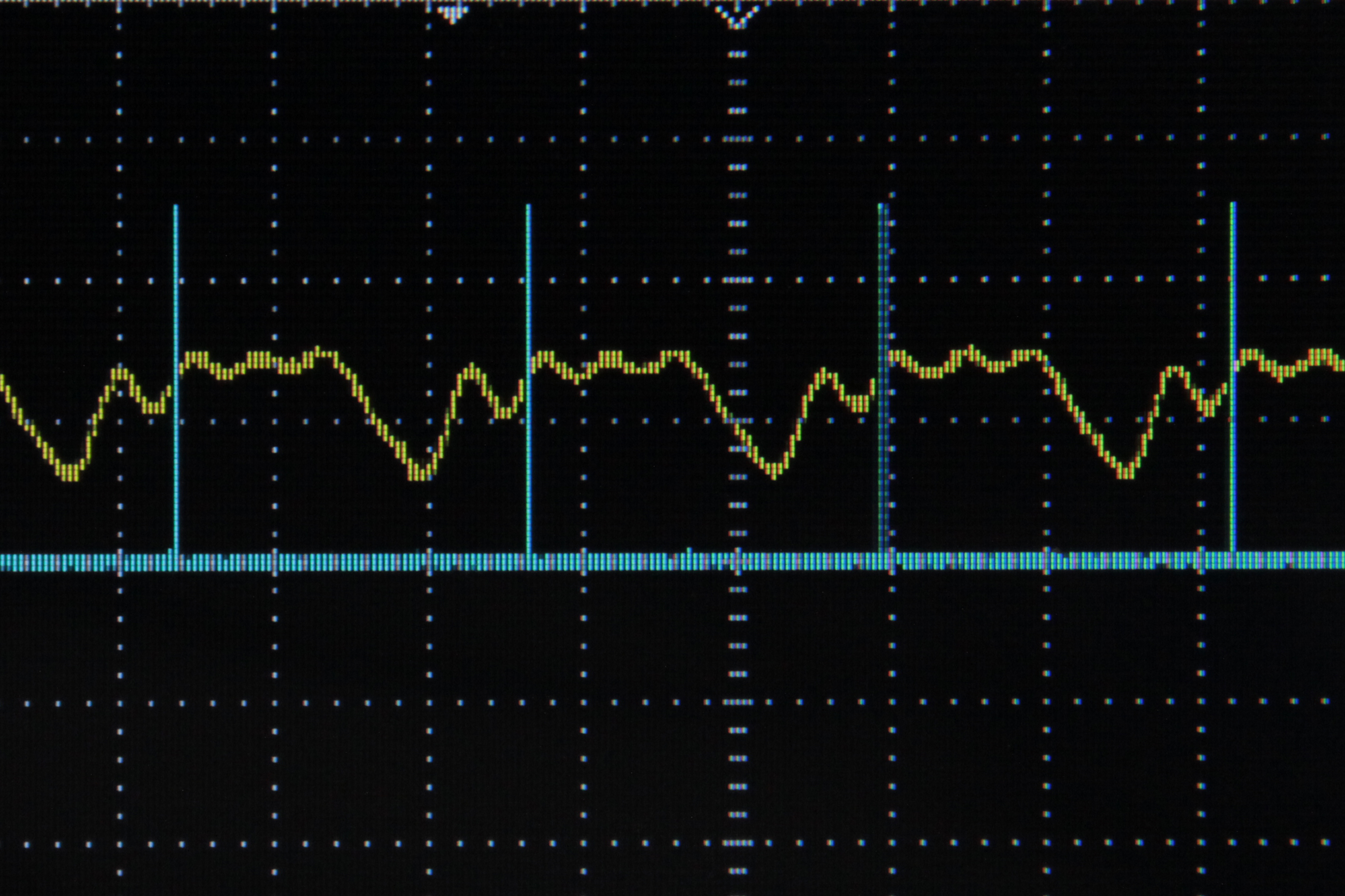 Arduino Frequency Detection: 4 Steps (with Pictures)