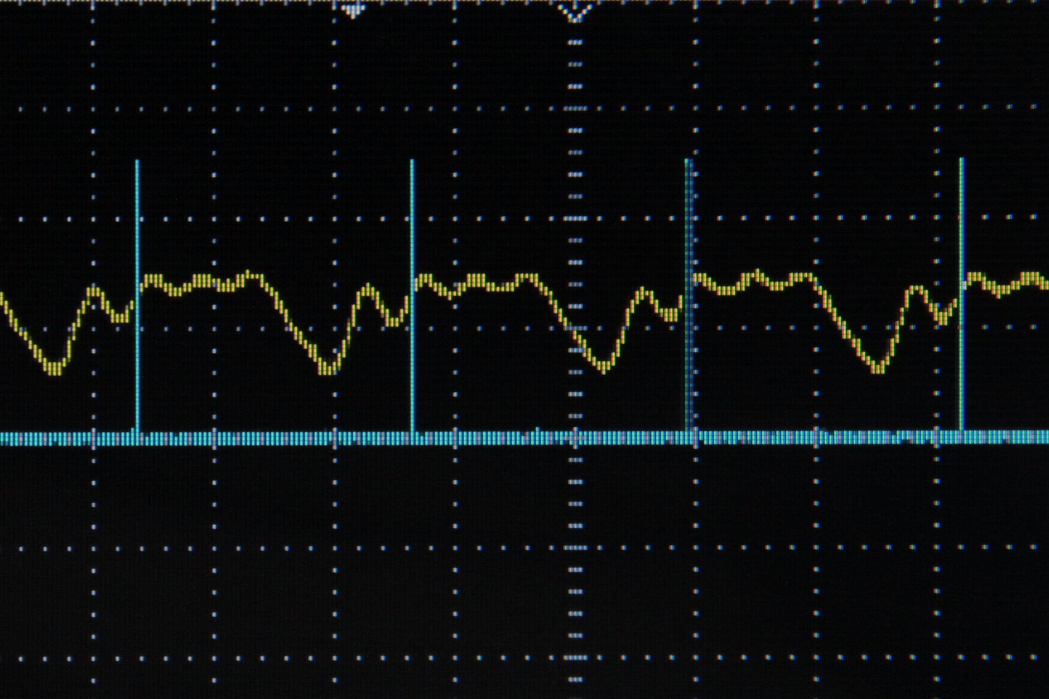Arduino Frequency Detection 4 Steps With Pictures Sine Wave Measurement Using Pic Microcontroller