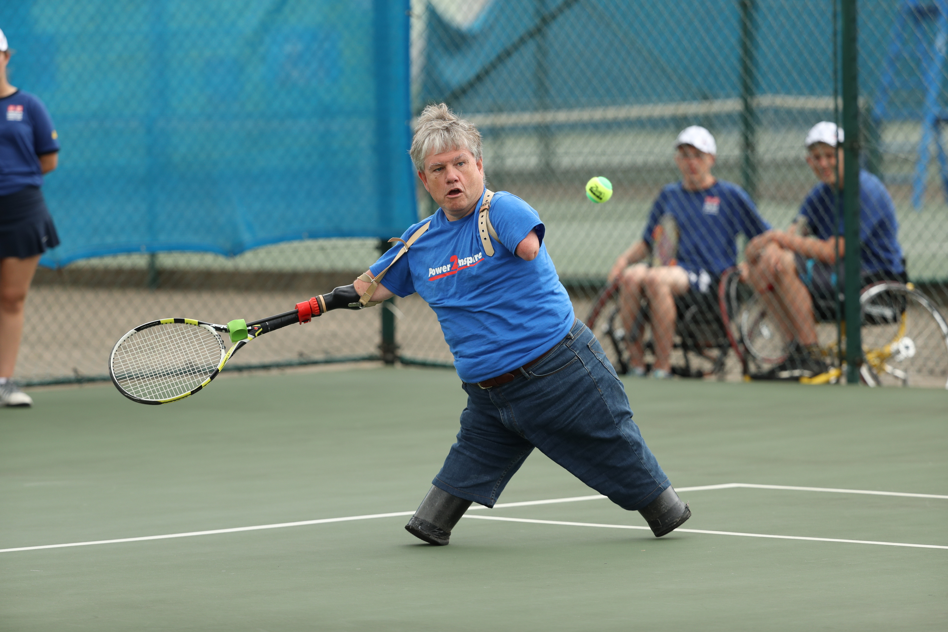 Picture of Tennis Prosthetic