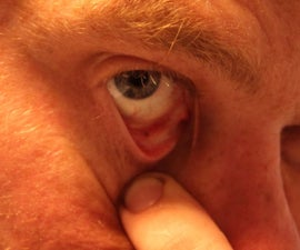 Removing Metal From the Eye