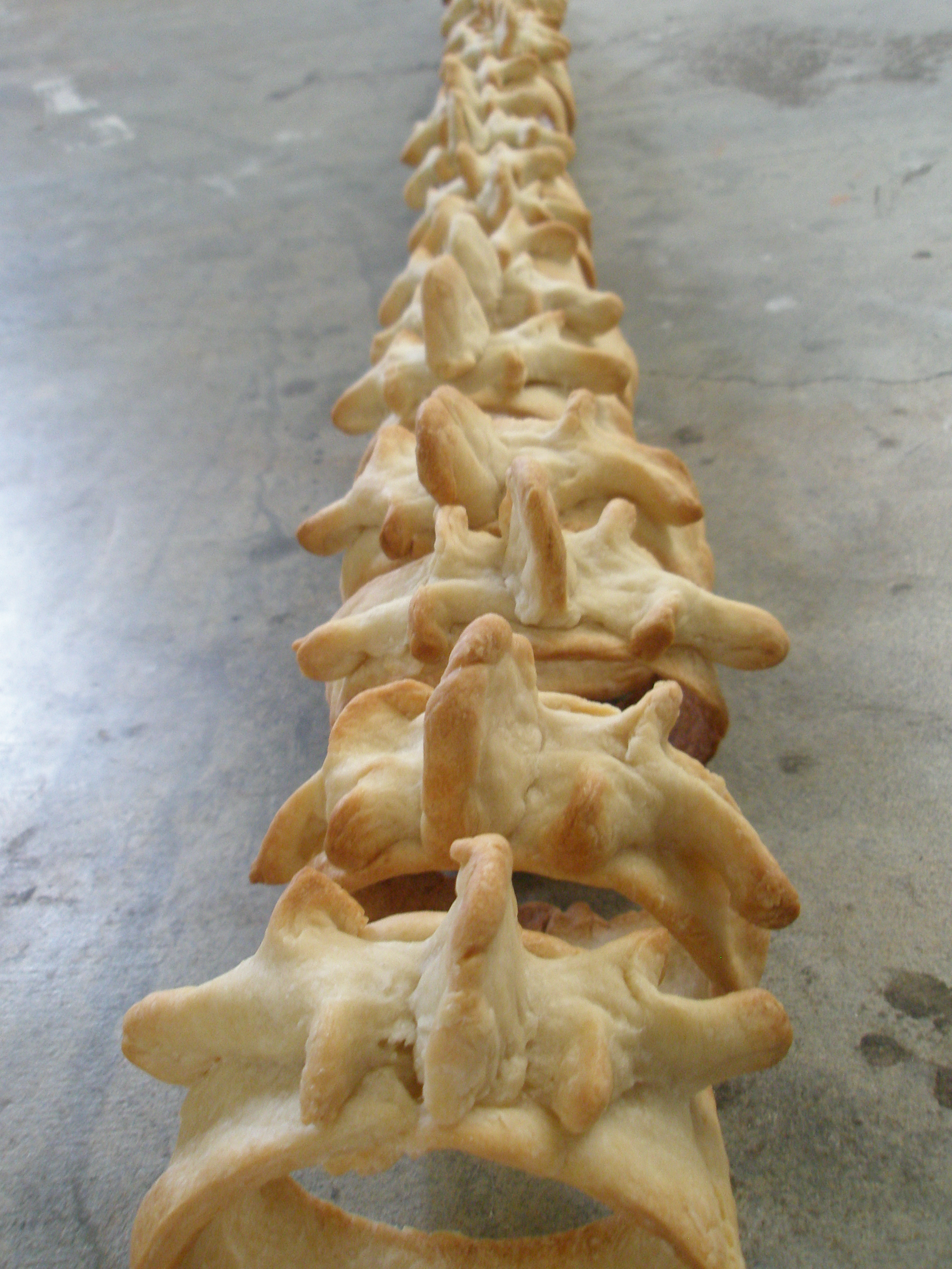 Picture of Spinal Crackers