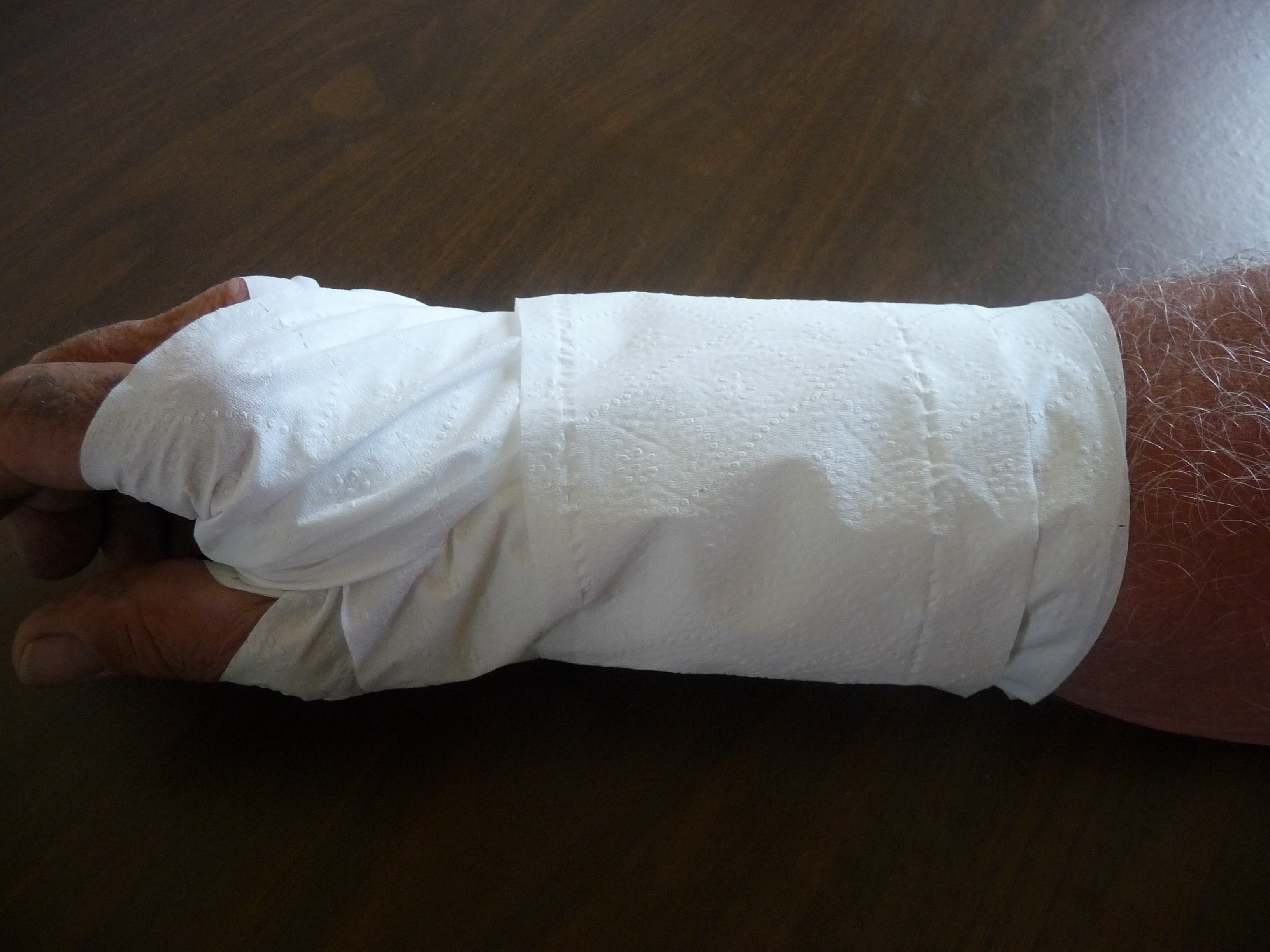 Picture of DIY Soft Cast Using Duct Tape