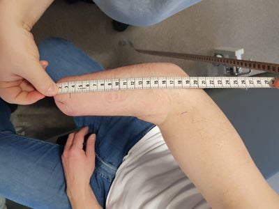 Prosthetic Arm  Windsurfing