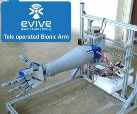Tele Operated Bionic Arm