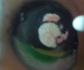How to fix a LPS eye