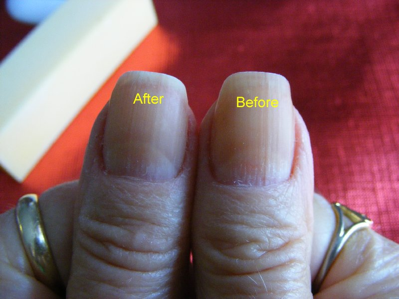 Picture of Nail Shaping