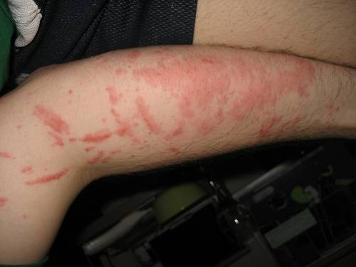 Picture of Home Remedy for Poison Ivy/ Poison Oak