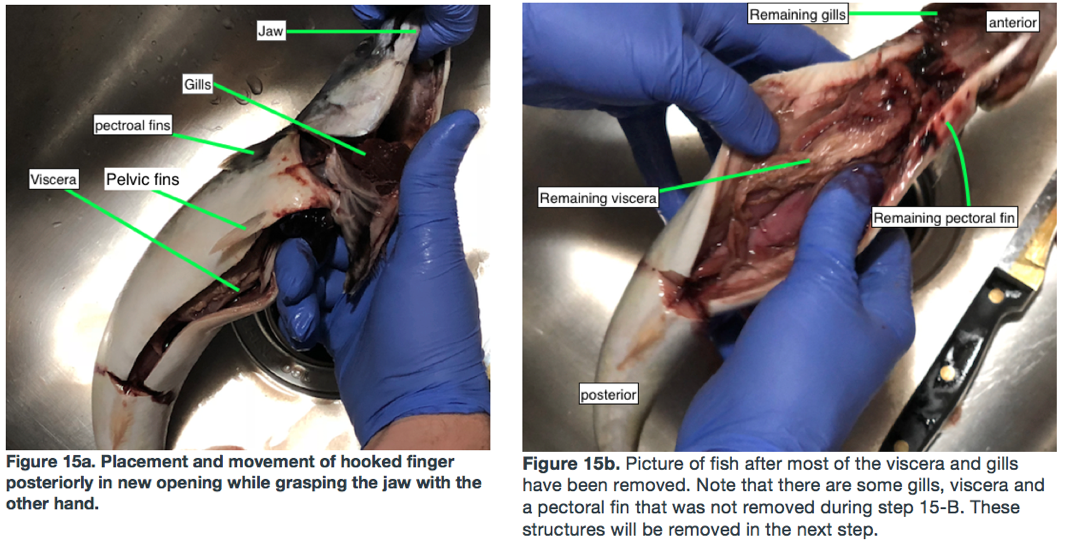 Picture of Removal of Viscera