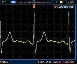 Make Your Own Electrocardiogram (ECG)