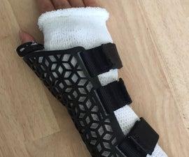 3D Printed - Thumb + Wrist Immobilization Brace
