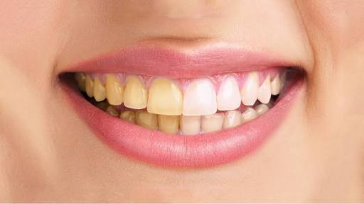 Picture of Yellow Teeths .   Ewww