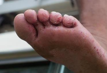 Picture of Remedies: Leeches, Foot Rot, and Refreshment