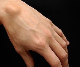 Get Rid of a Ganglion- Painlessly