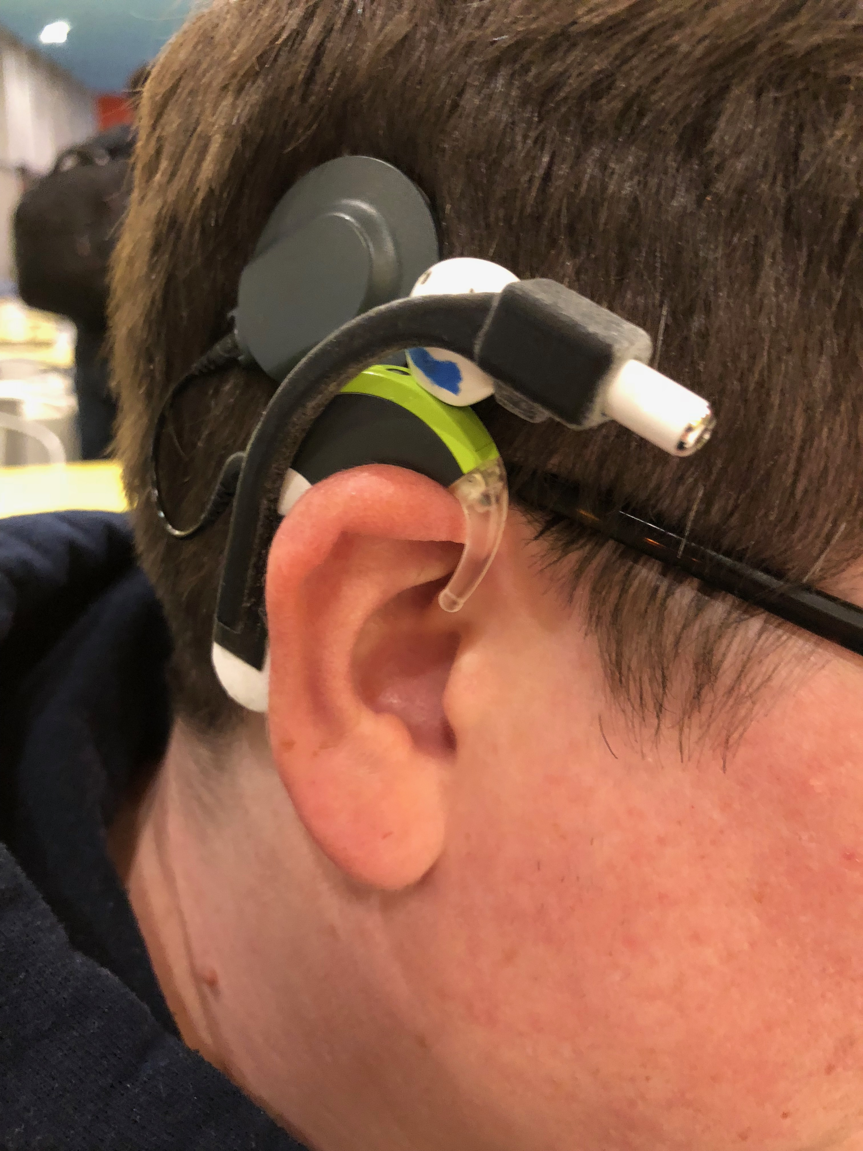 Picture of CiPod Wireless: AirPod Attachments for Cochlear Implants