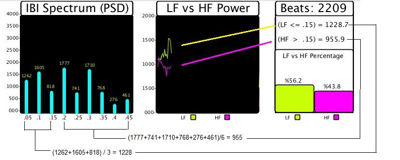 Picture of Arduino Pulse Sensor Cardio Graph