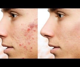 How to Remove Acne and Zits With Photoshop
