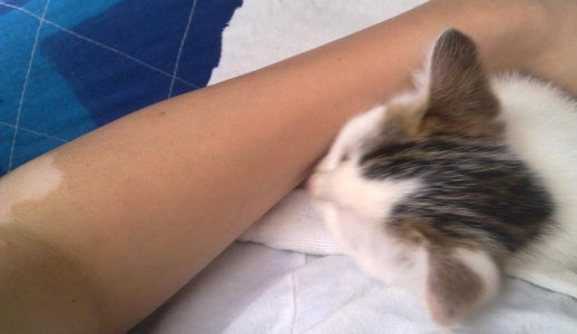 Ways to Hide a Lonely Vitiligo Spot or a Scar