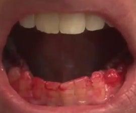 Bloody Toothbrush