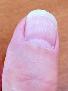 How to Repair a Cracked Fingernail