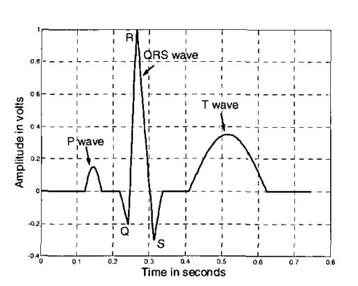 Picture of Electrocardiogram (ECG) Circuit