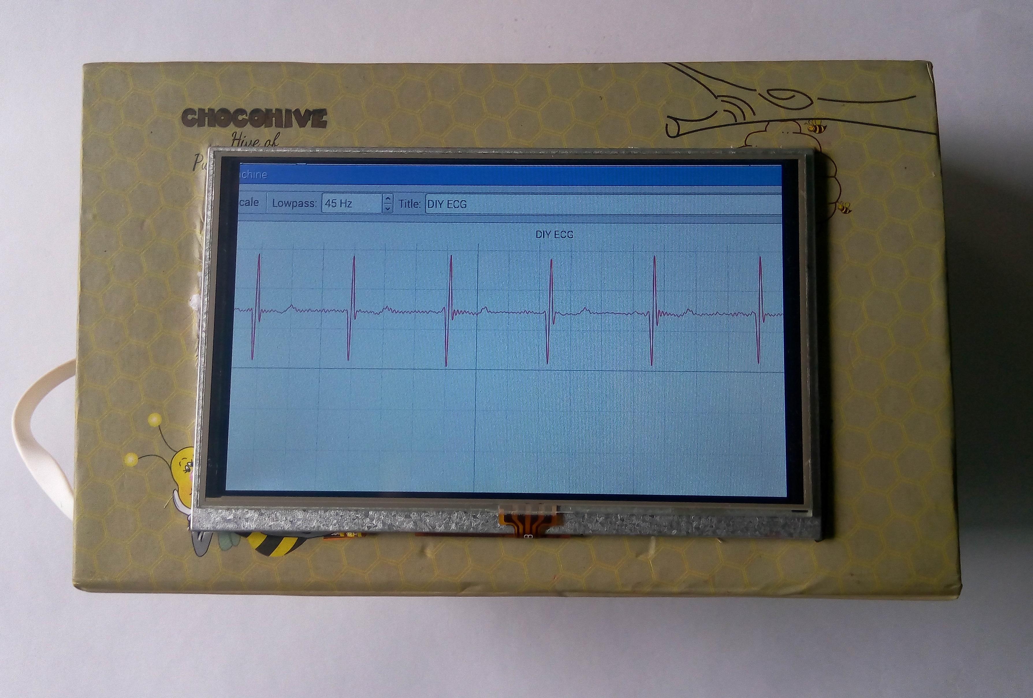 Picture of Portable ECG Machine