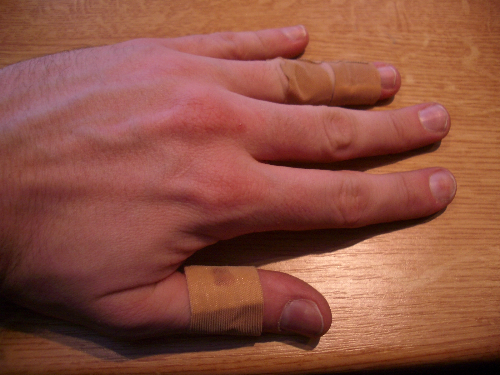 Picture of Change Bandages