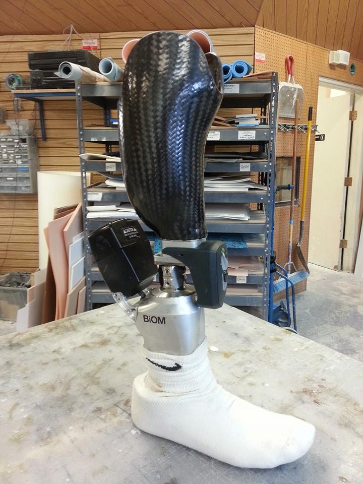 Picture of How a Prosthetic Leg Is Made!