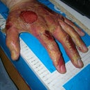 Zombie skin and wounds
