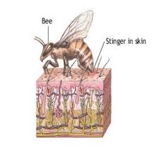 Home Remedy for Bee Stings,bug Bites Etc.