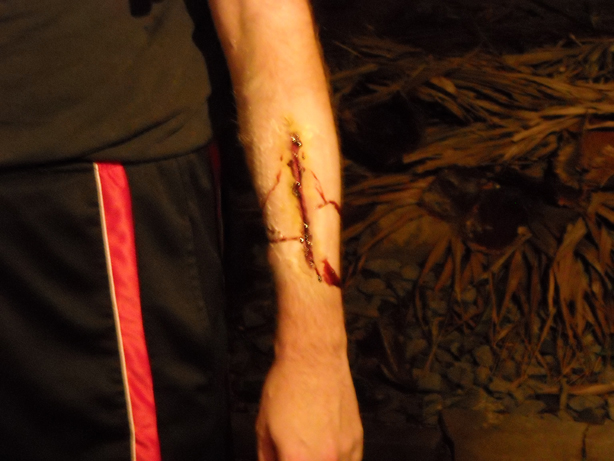 Picture of Gelatin Wounds.
