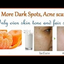 No More Dark Spots, Acne Scars:This Mask Removes Them All!!