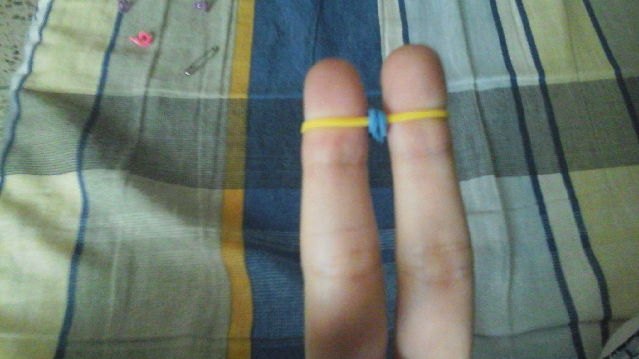 Picture of Add Bands.