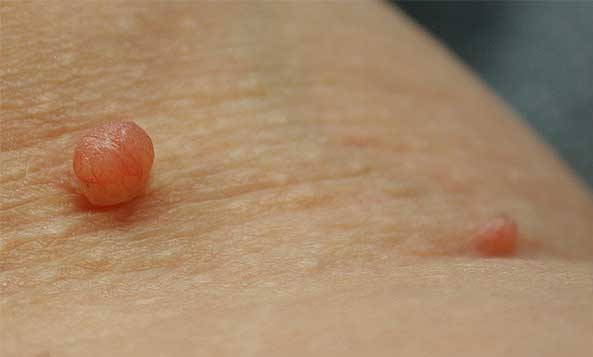 Picture of Skin Tags: Defined, Cause, and Removal.