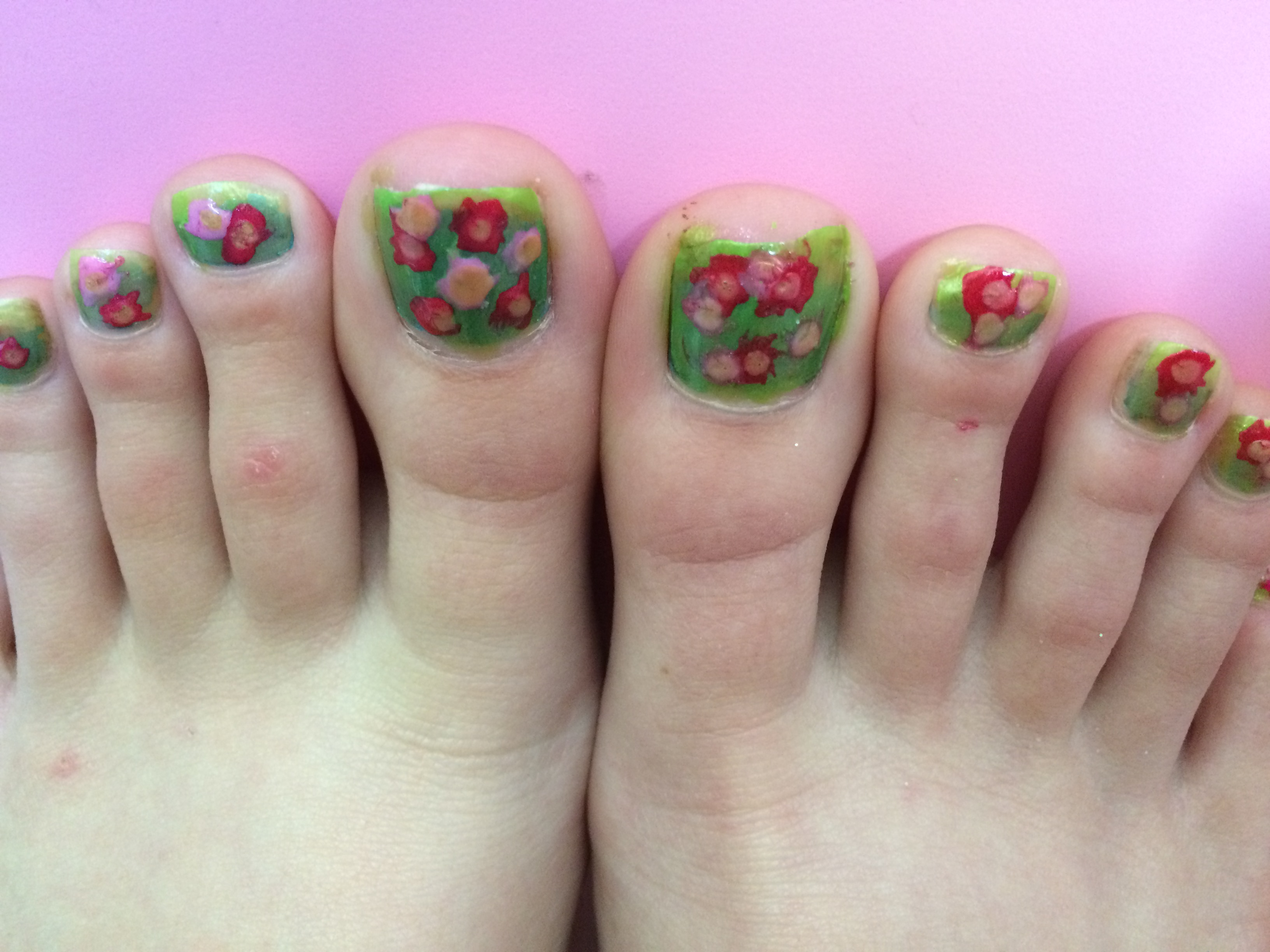 Picture of Rosy Toes!
