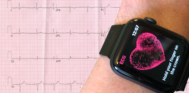 Simulate a 12-Lead ECG With Apple Watch Series 4 or Later