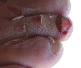 Free Yacht Chapter 4: Outboard Motor Mutilates Foot