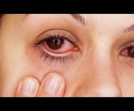 How to Instantly Relieve Itchy/Irritated Allergy Eyes!!