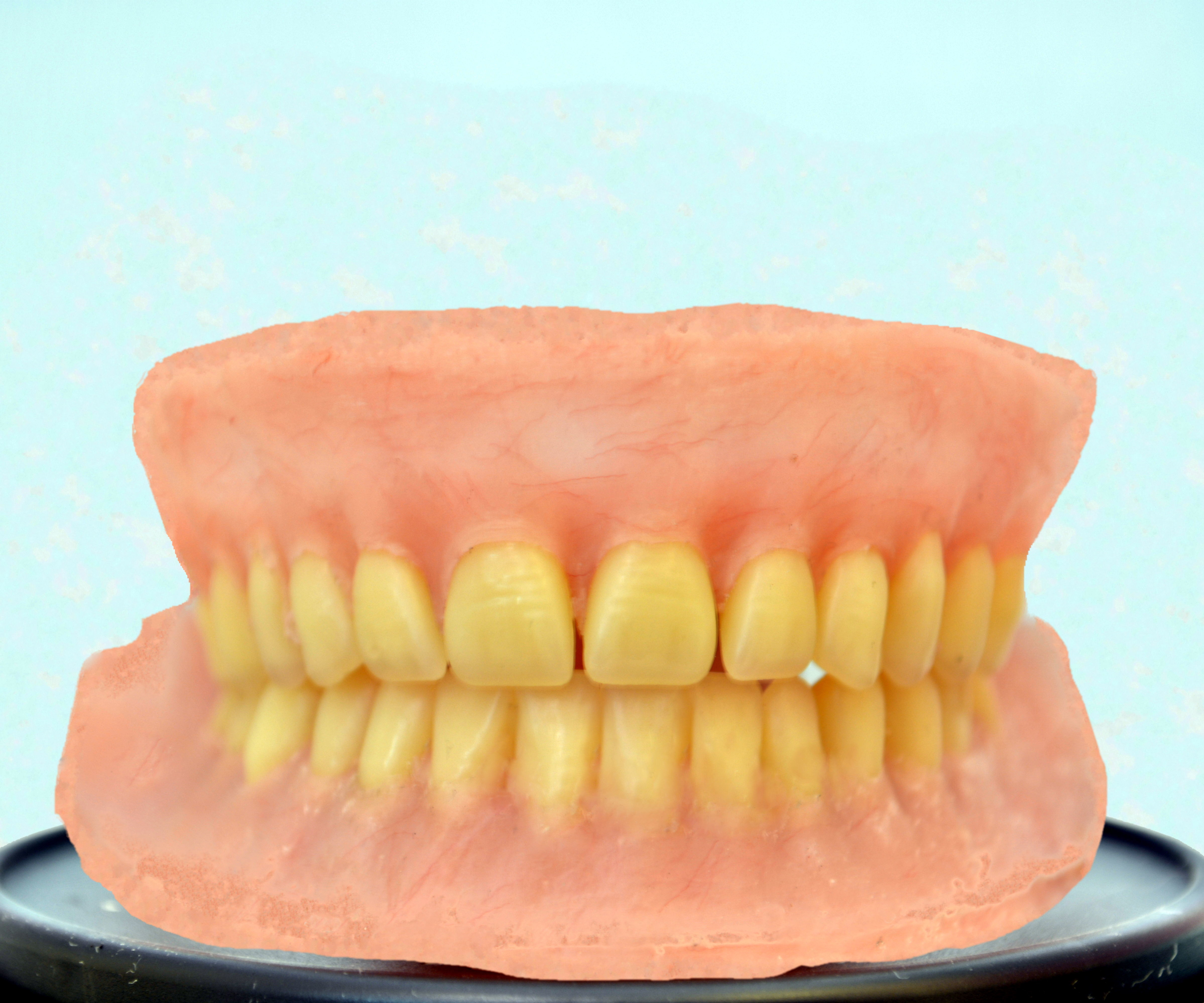 DIY Dentures : a Post-Surgical Plan: 12 Steps (with Pictures)