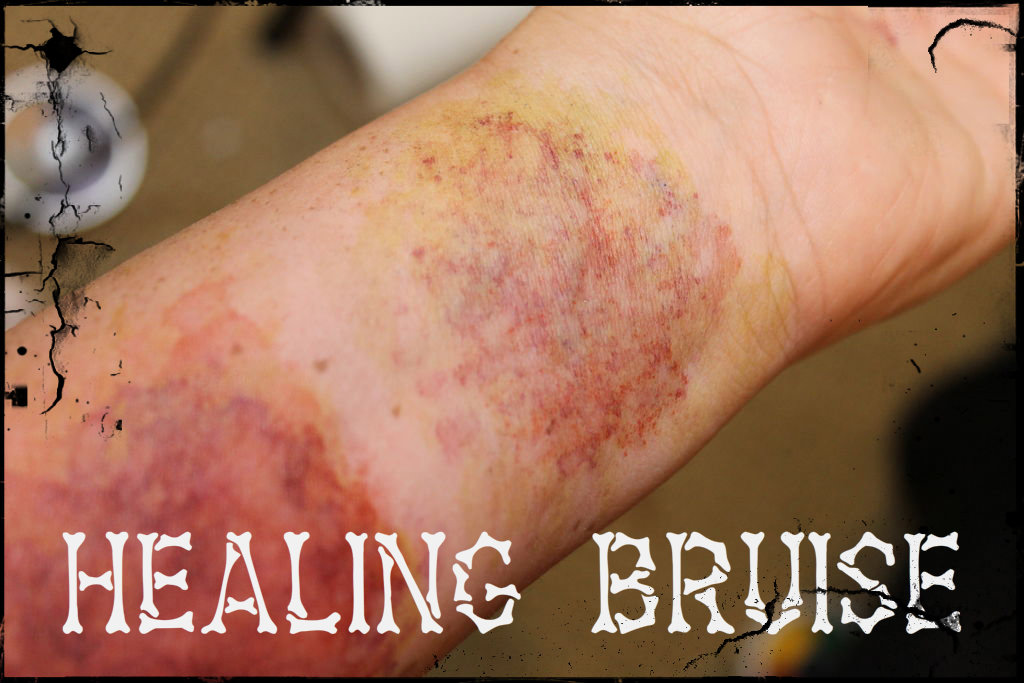 Picture of Healing Bruise