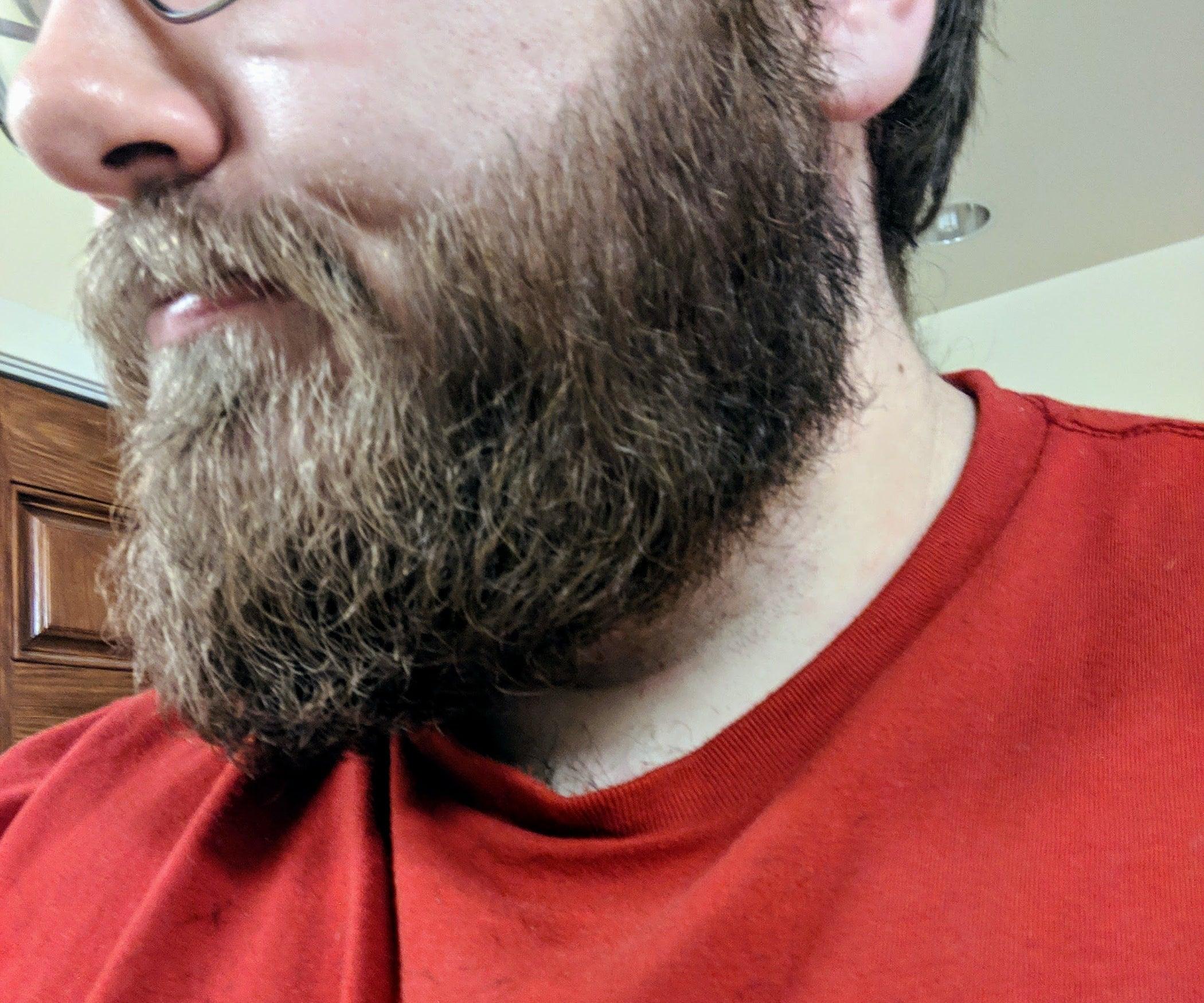 QnA VBage Beard Care