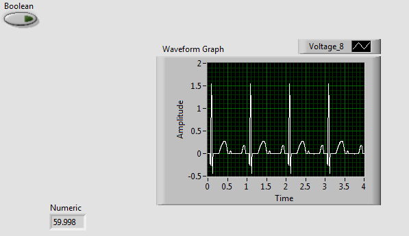 Picture of LabVIEW to Plot ECG Waveform and Calculate Heart Rate (Beats Per Minute)