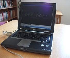ECG on your laptop!