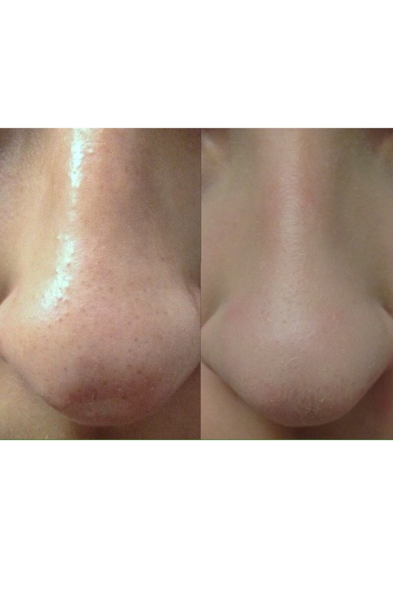 Picture of How to Cleanly Remove Blackheads Painlessly!