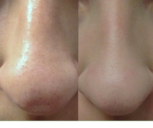 How to Cleanly Remove Blackheads Painlessly!